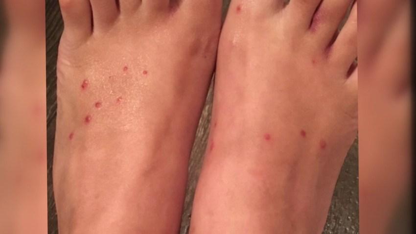 enfermedad causada por los ácaros