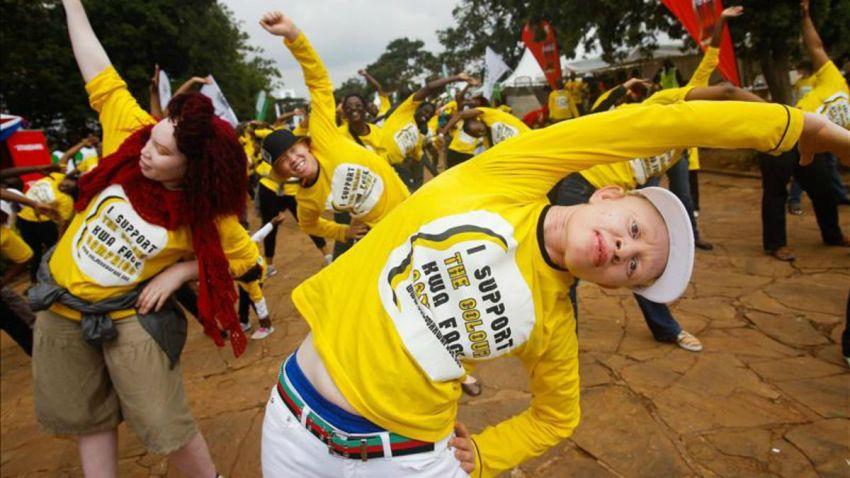 tLMD-albino-albinos-en-nairobi-kenia-EFE-11107664w
