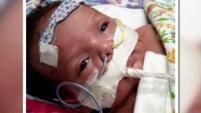 Ella pasó 46 días en el hospital tras una condición frecuente en infantes, pero que en este caso la dejó al borde de la muerte....