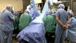 Trasplantan manos a paciente que perdió sus extremidades