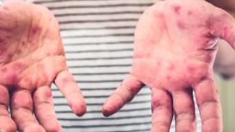 Confirman primer caso de sarampión en condado Dallas