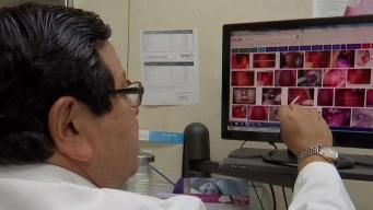 Preocupación por casos de sarampión en Texas