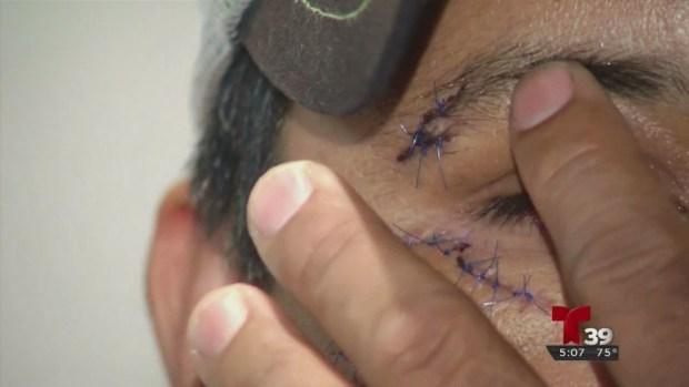 Un hombre de Dallas es víctima de una brutal golpiza
