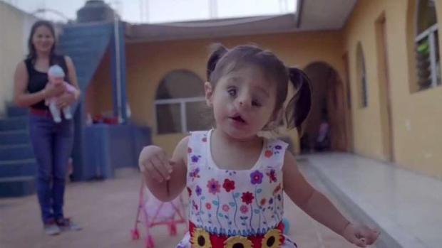 [TLMD - Dallas] Dallas: Realizan cirugías en rostro de niña