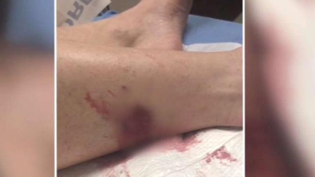 [TLMD - Dallas] Otro ataque de coyote en Frisco