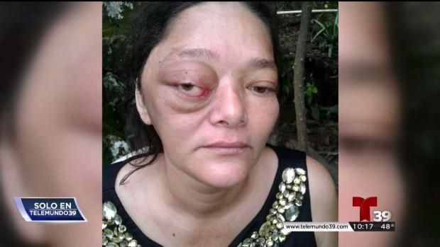 Un tumor roba la visión a una madre hondureña