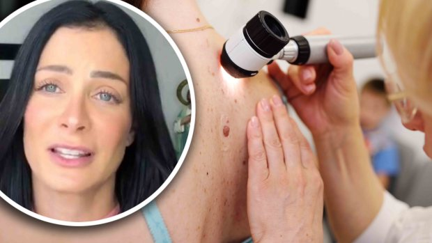 [TLMD - LV] Cómo protegerse del peligroso cáncer de piel