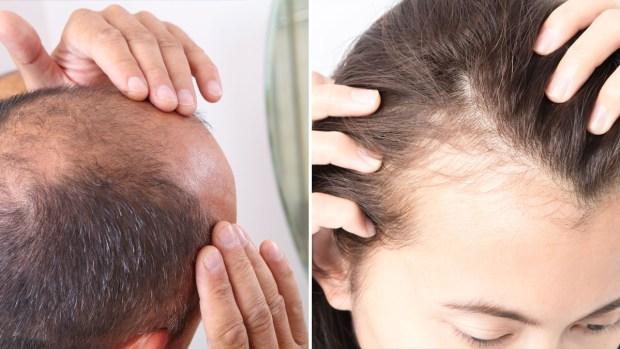 Pérdida del cabello: quiénes son más propensos y qué se puede hacer