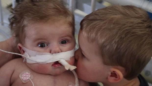Desgarrador: la increíble historia del bebé con medio corazón