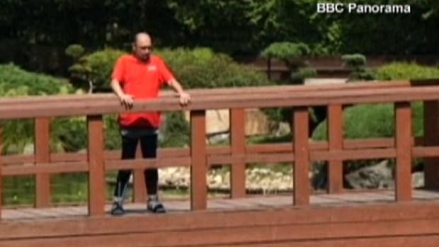 Video: Paralítico logra caminar tras tratamiento