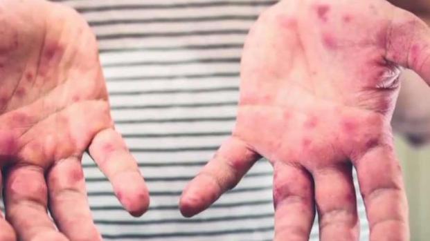 [TLMD - Dallas] Confirman segundo caso de sarampión en condado Collin