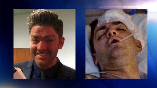 Brutal ataque a un director de teatro en Dallas