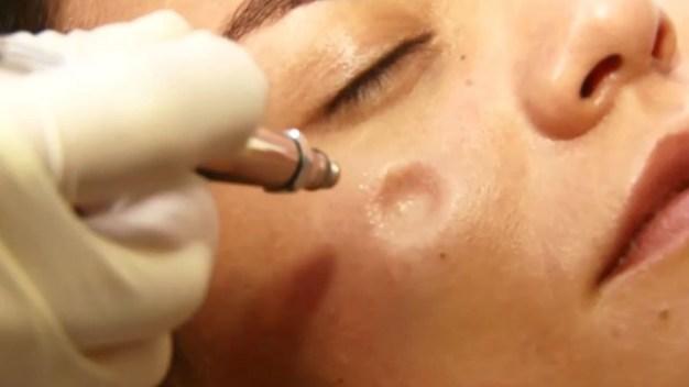 Aeroexfoliación, novedoso método para limpiar la piel del rostro