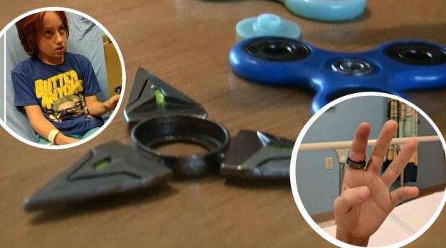 Insólita técnica: así le quitan a niño el spinner atascado en su dedo