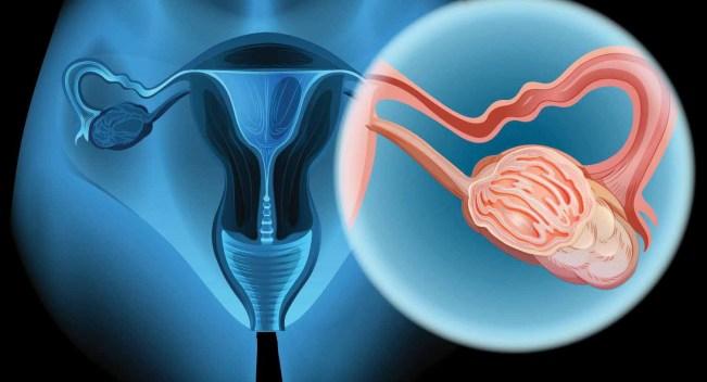 Cáncer de ovario: conoce sus síntomas