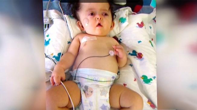 Bebé con Síndrome de Apert lucha por su vida en Dallas