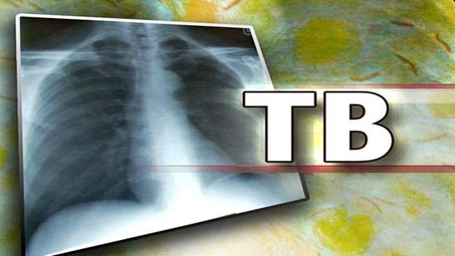Estudiante con tuberculosis
